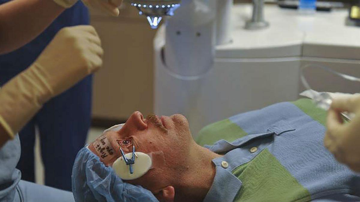 Microincisión en cirugía de cataratas