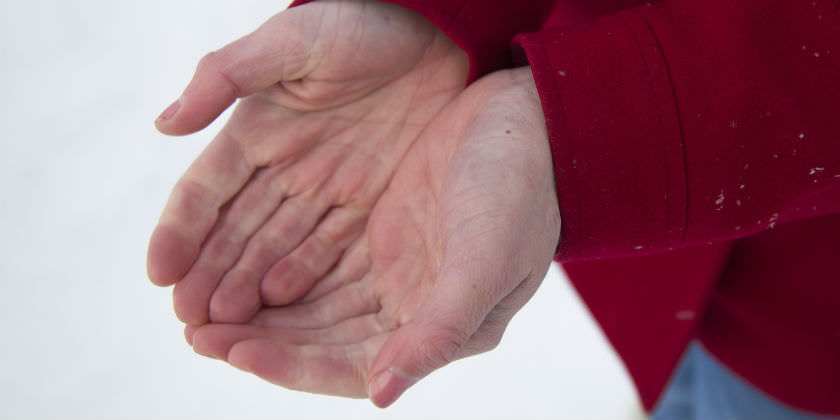 Las manos de una persona muy rojas