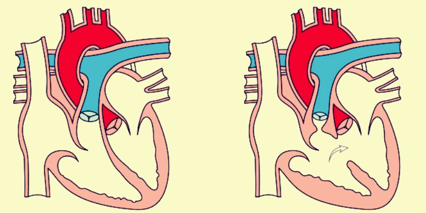 malformación cardiaca