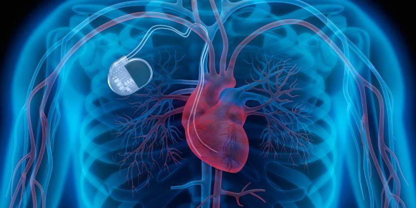 Desfibrilador implantable