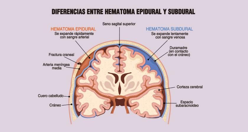 Diferencias entre hematoma epidural y subdural
