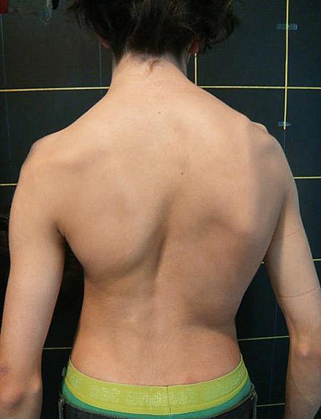 Espalda de una adolescente con escoliosis.