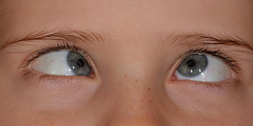 niño con ojos con estrabismo
