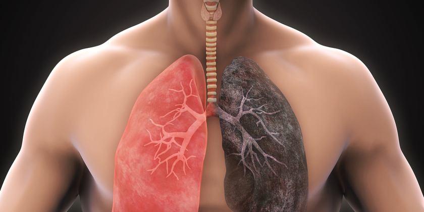 Tabaquismo asbestosis