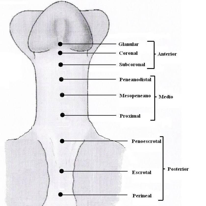 Hipospadias.