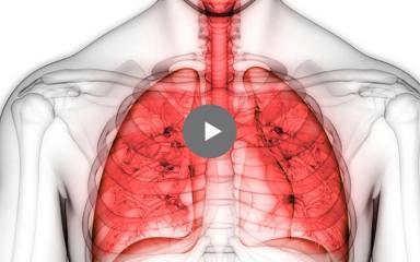 ¿Qué es la fibrosis pulmonar idiopática?